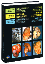 Хвороби нирок. Атлас макропатології та мікропатології.